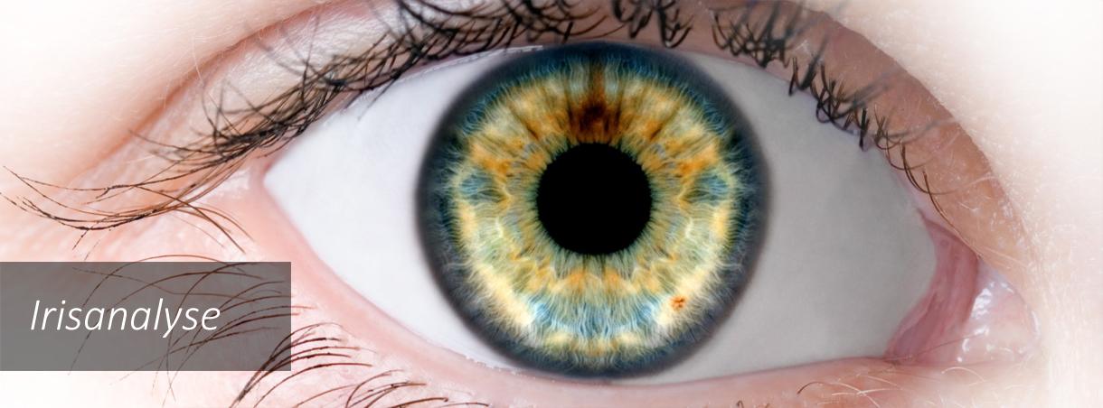Hvad er irisanalyse. Hjælp til at detoxe. Moderne og klassisk irisanalyse